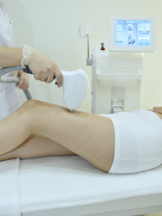 Jovem mulher que recebe o tratamento do laser do epilation fotos de stock