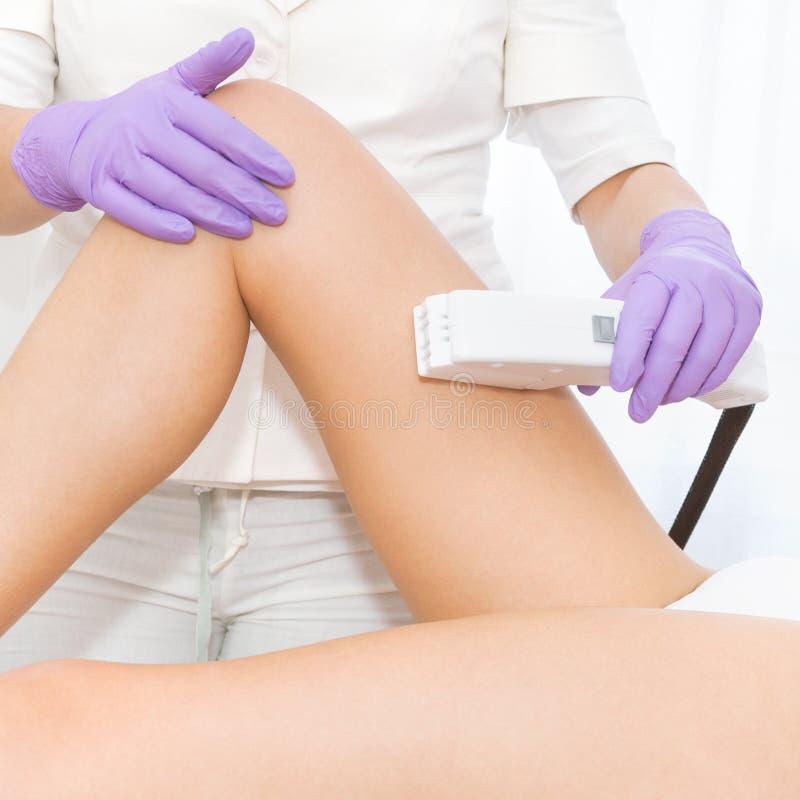 Jovem mulher que recebe o tratamento do laser do epilation imagens de stock royalty free