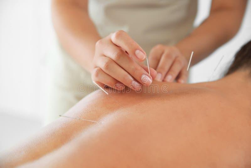 Jovem mulher que submete-se ao tratamento da acupuntura fotos de stock