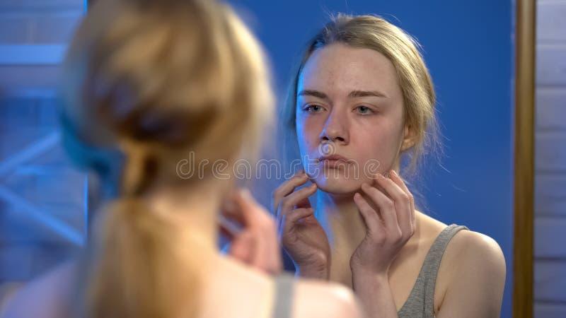 Jovem senhora infeliz que olha na reflexão de espelho, imperfeição da pele, insegurança fotografia de stock royalty free