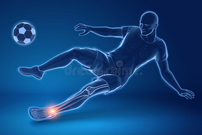 Jugador de fútbol herido en rayo de x libre illustration