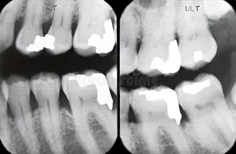Juiste Periodontal Röntgenstralen stock fotografie