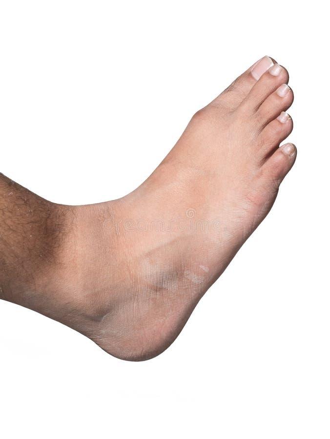 Juiste voet dichte omhooggaand met witte achtergrond stock foto