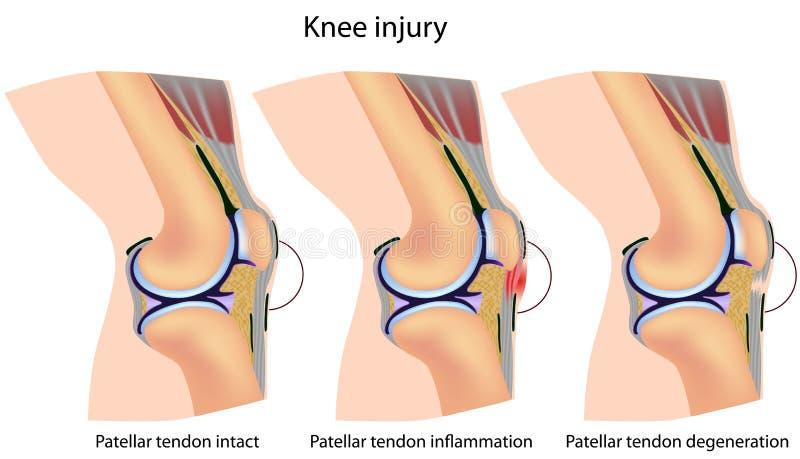 Jumper's knee anatomy stock illustration