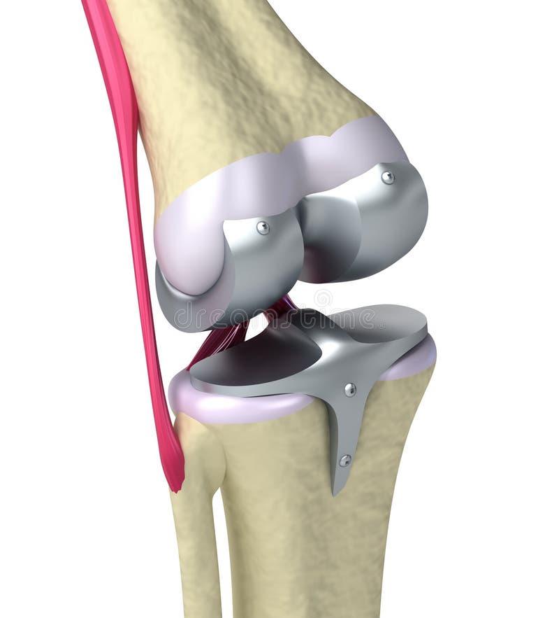 Junção de dobradiça do joelho e do titânio ilustração do vetor