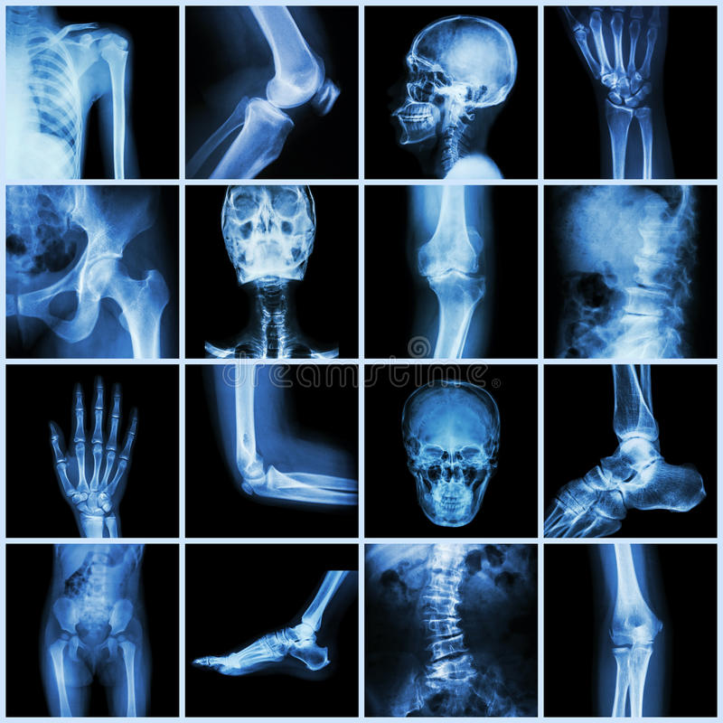 Junção humana da coleção (pelve principal da parte traseira da espinha da palma do dedo da mão do pulso do antebraço do cotovelo  ilustração do vetor