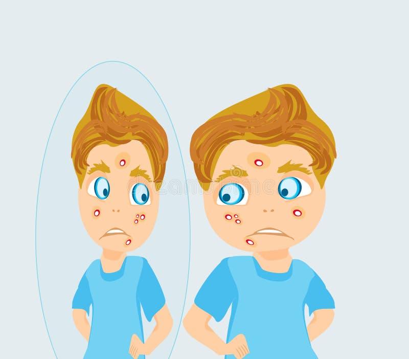 Junge in der Pubertät mit Akne lizenzfreie abbildung