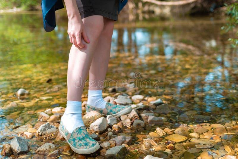 Junge Frau, die ihr Bein wegen des Insektenstichs in der Natur verkratzt In den Hintergrundbäumen und -fluß lizenzfreie stockfotografie