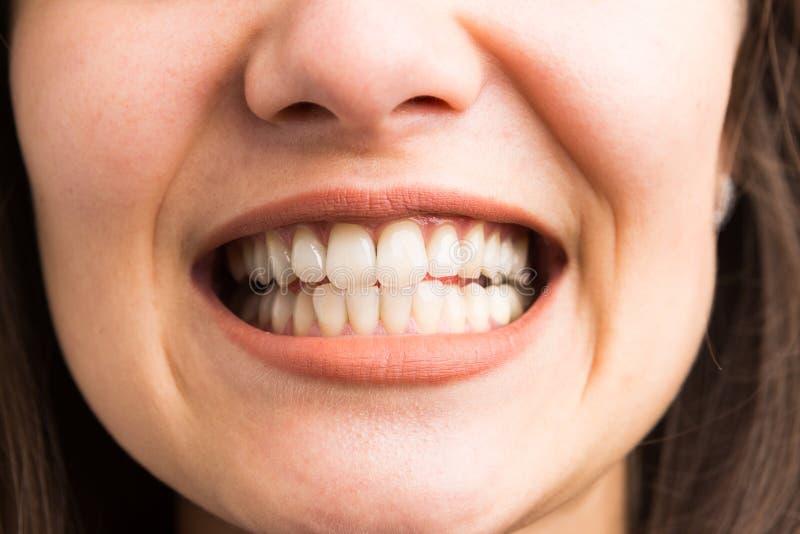 Junge Frau, die ihre Zähne zeigt stockfoto