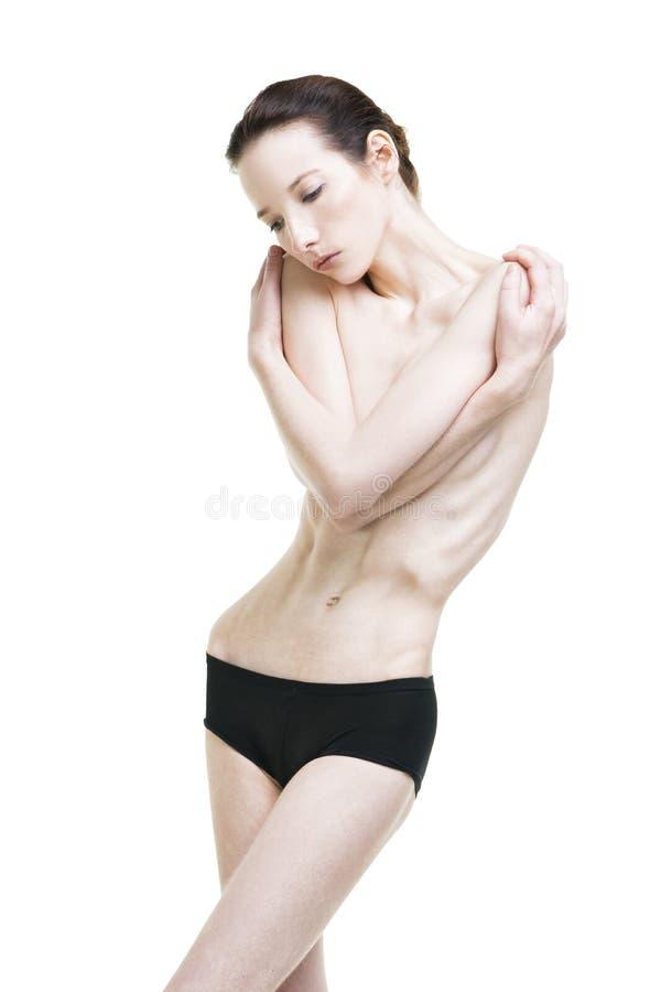 Junge Frau, die unter Magersucht leidet stockfotos