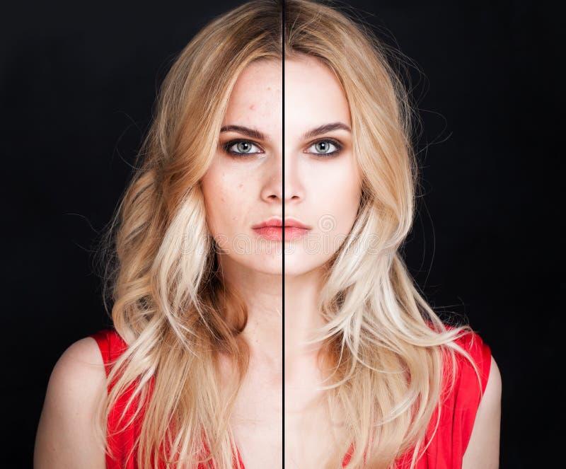 Junge Frau mit Haut-Problem und klarer Haut lizenzfreies stockfoto
