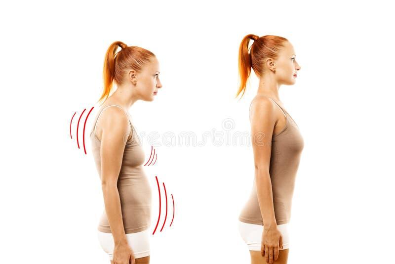 Junge Frau mit Positionsdefekt und idealem Lager stockfoto