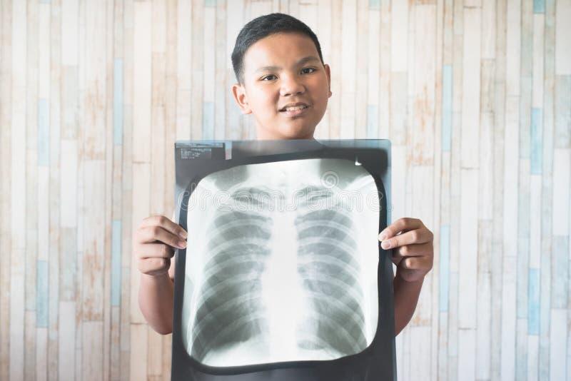 Junge Teenager mit seinem Röntgenfilm stockfoto