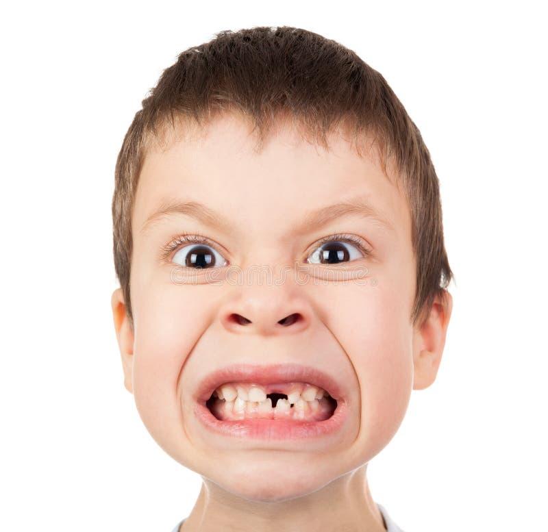 Jungengesichtsnahaufnahme mit einem verlorenen Zahn lizenzfreie stockfotografie