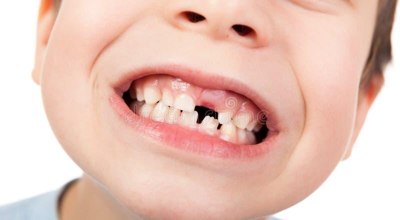 Jungengesichtsnahaufnahme mit einem verlorenen Zahn stockfotografie