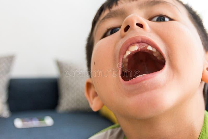 Junger asiatischer/kaukasischer Mischethniejunge, der seinen Mund mit Verfehlungsvorderzahnabschluß herauf Zahnpflegebild öffnet stockbild