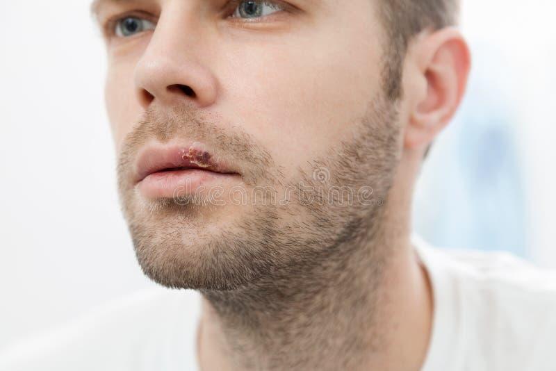 Junger Mann, der unter Herpes auf seinem Mund leidet stockfotografie
