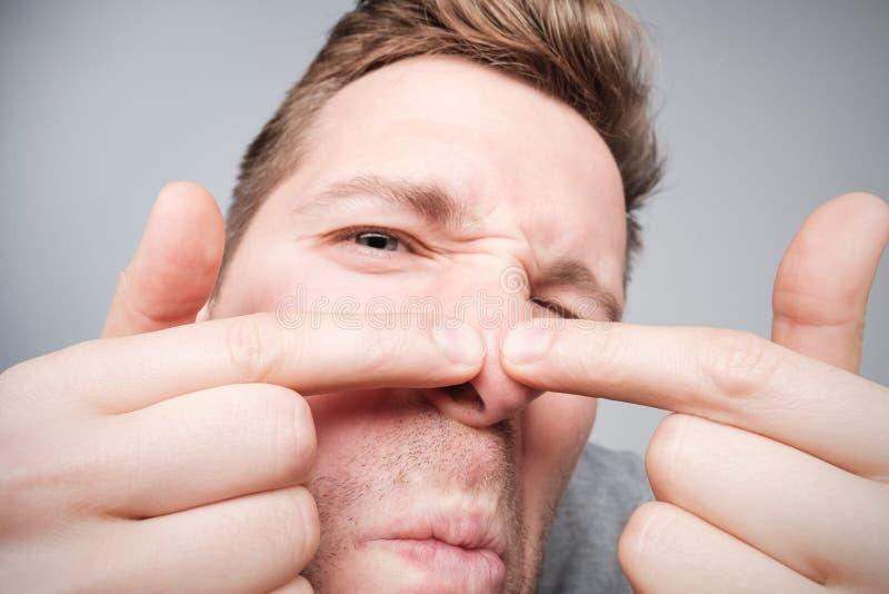 Junger Mann, der versucht, einen Pickel, Männer ` s skincare Konzept zusammenzudrücken lizenzfreies stockfoto