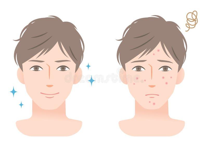 Junger Mann mit Akne auf seinem Gesicht vor und nach Gesichtsbehandlung vektor abbildung