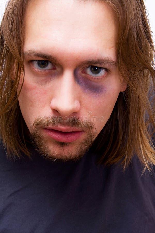 Junger Mann mit blauem Auge lizenzfreie stockfotos