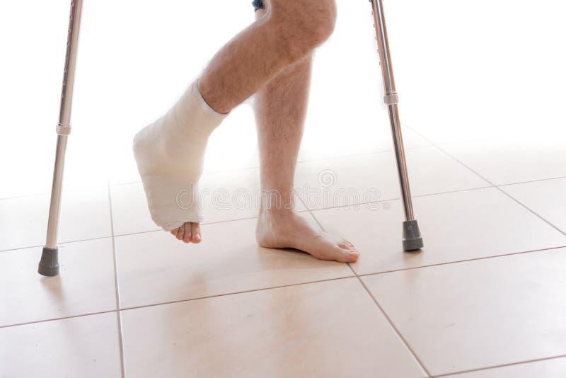 Junger Mann mit einem gebrochenen Knöchel und einer Beinform stockbild