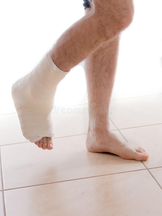 Junger Mann mit einem gebrochenen Knöchel und einer Beinform stockfotografie