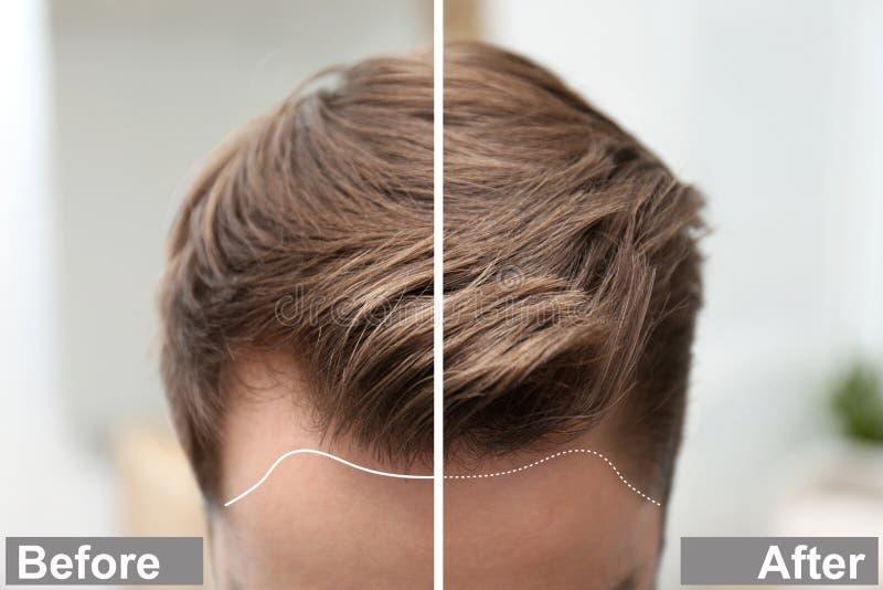 Junger Mann vor und nach Haarausfallbehandlung gegen unscharfen Hintergrund stockbild