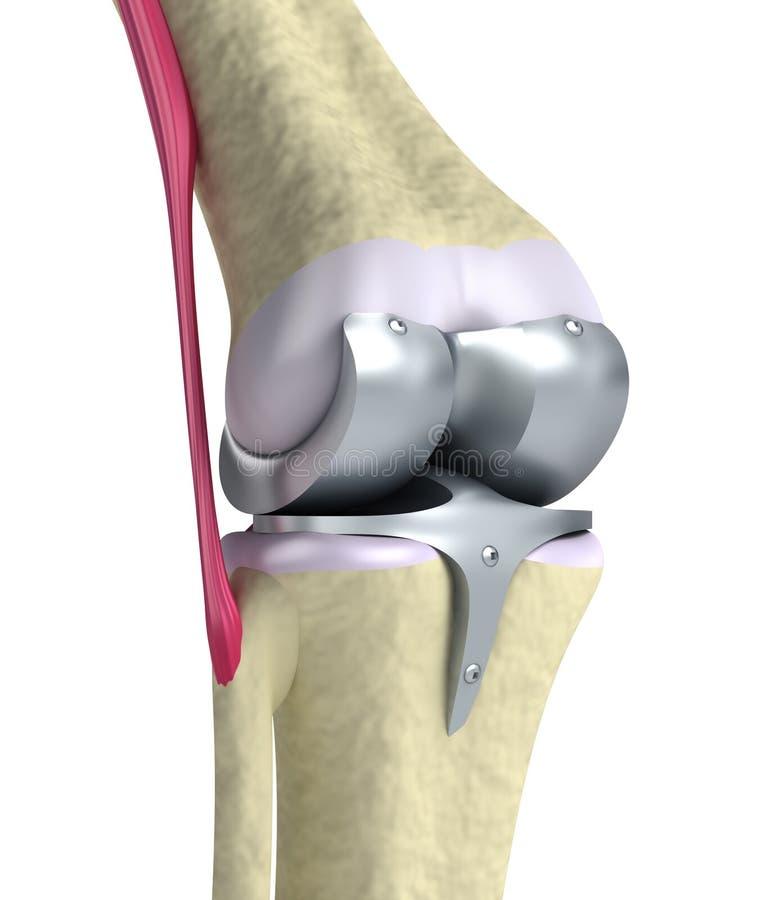 Junta de bisagra de la rodilla y del titanio stock de ilustración