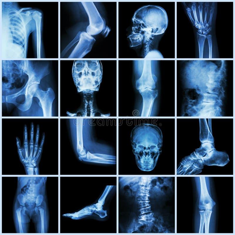 Junta humana de la colección (pelvis principal de la parte posterior de la espina dorsal de la palma del finger de la mano de la  ilustración del vector