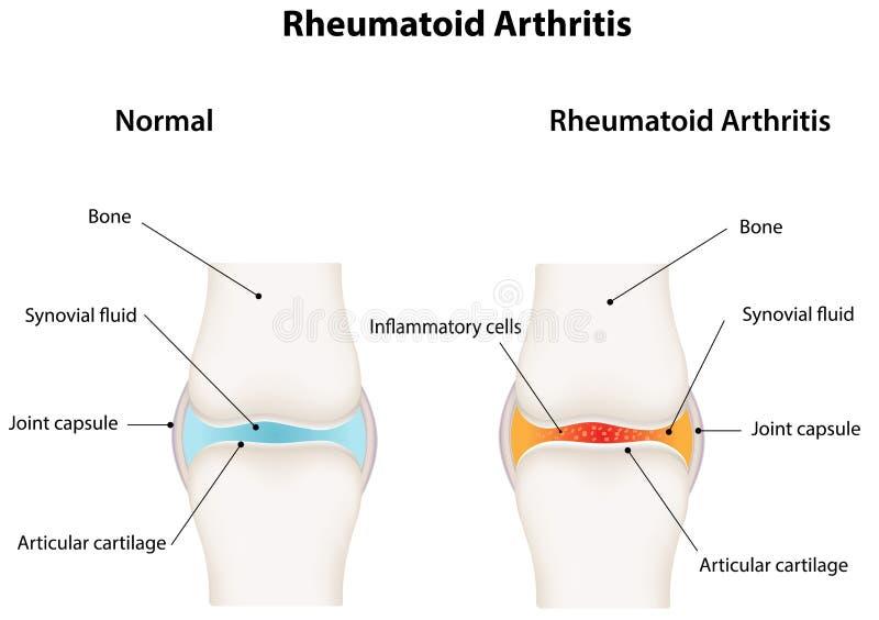 Junta sinovial de la artritis reumatoide ilustración del vector