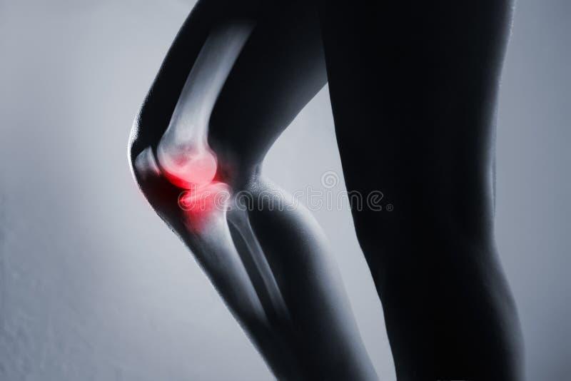 Junta y pierna humanas de rodilla en radiografía, en fondo gris fotos de archivo libres de regalías