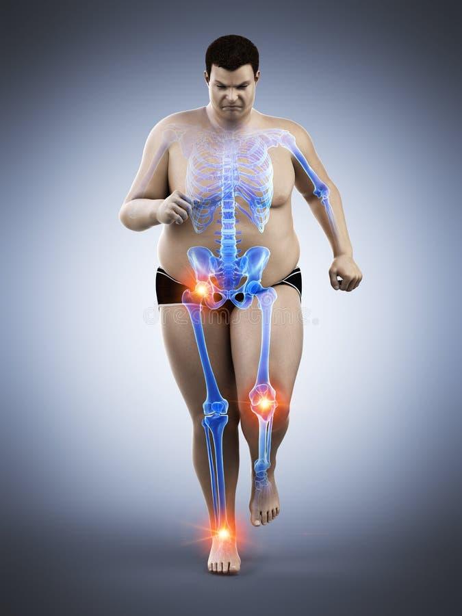 juntas dolorosas de los corredores obesos ilustración del vector