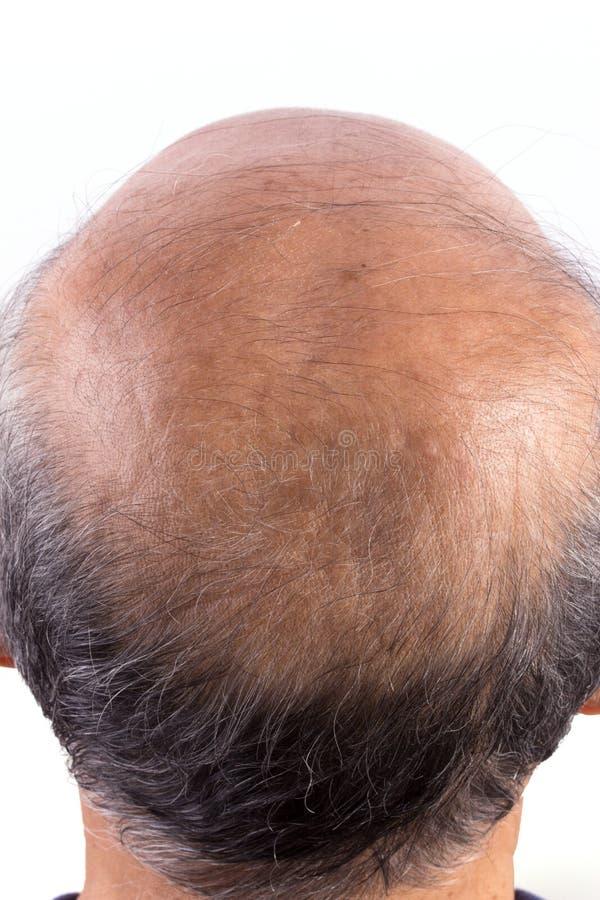 Kahler Mann des Haarverlustes lizenzfreie stockfotos