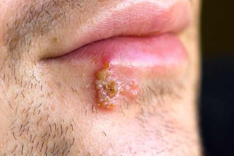 kalla herpeslabialisskav arkivbild