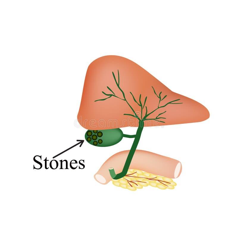 Kamienie w gallbladder Dwunastnica, trzustka royalty ilustracja