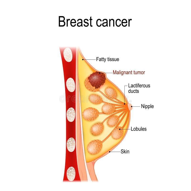 Kanker van de borst Financier de strijd, vind een behandelings postzegel Dwarsdoorsnede van de borstklier met tumor vector illustratie