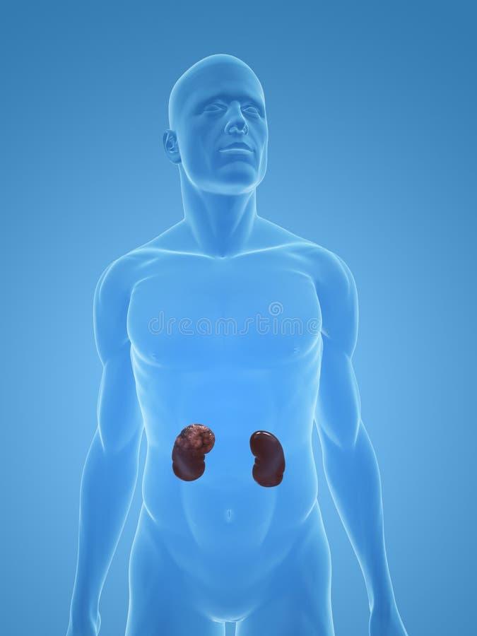 Kanker van de nier vector illustratie