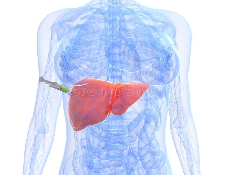Kankerinjectie van de lever - biopsie vector illustratie