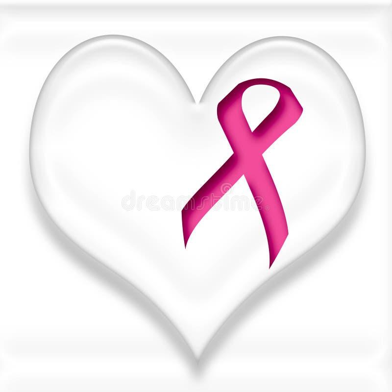 Kankersteun van de borst stock illustratie