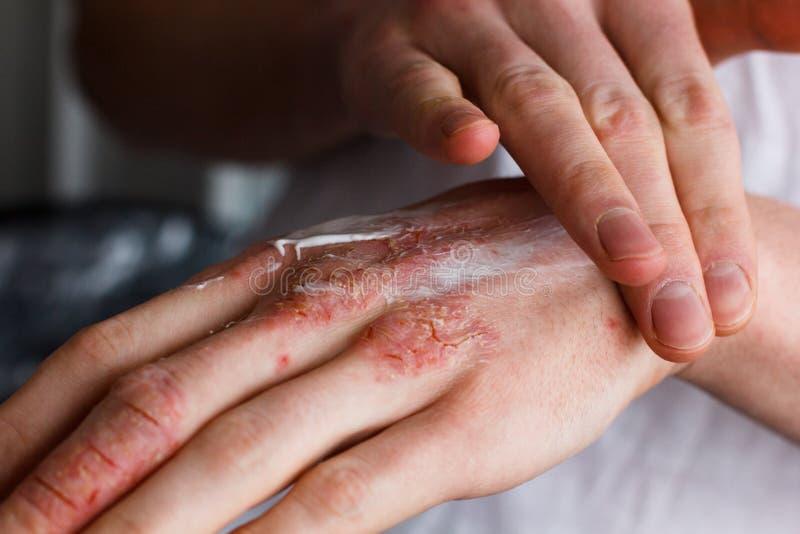 Kantjusterad bild av en ung man som sätter fuktighetsbevarande hudkräm på hans hand med mycket torr hud och djupa sprickor med kr royaltyfri bild