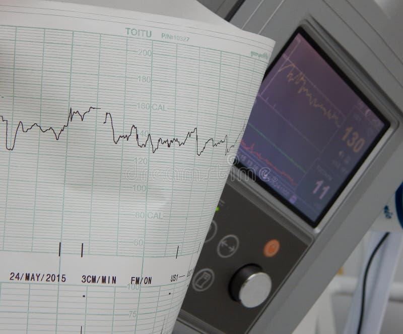Kardiografen visar foster- hjärtahastighet royaltyfri bild