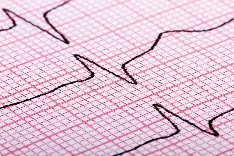 Kardiogram av hjärtatakten arkivfoto