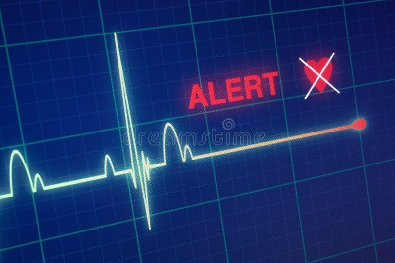 Kardiogram för hjärtatakter på bildskärmen arkivfoton
