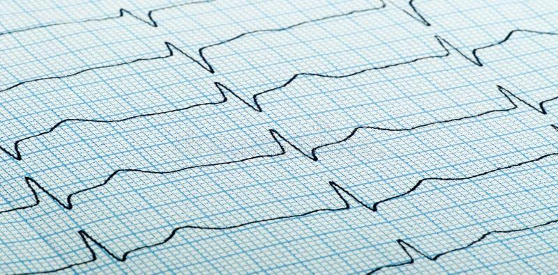 Kardiogram kierowy rytm zdjęcia stock