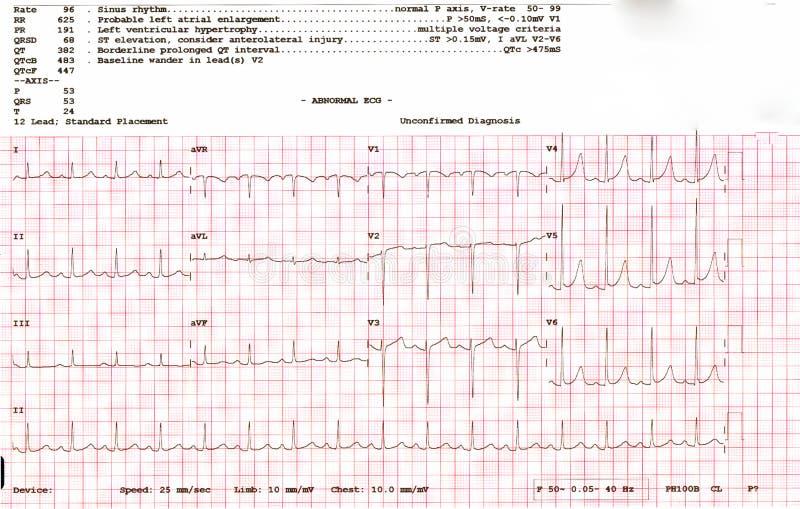 Kardiogramwaveform från en EKG som visar onormalt EKGprov en patient royaltyfria foton
