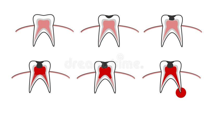 Karies inszenieren, Zahnverfallentwurf mit Karies, stomatologische Illustration mit zahnmedizinischen Krankheiten, Punkt für Punk vektor abbildung