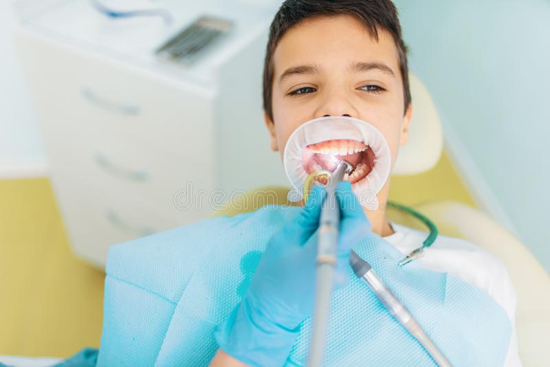 Kariesborttagningstillvägagångssätt, pediatrisk tandläkekonst arkivbild