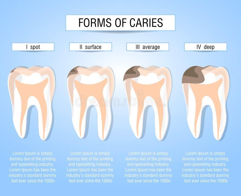 Kariesetapper av utveckling Visuellt hjälpmedel för studenter, tandläkare, klinikpatienter Besegra källan av förstörelse i tänder vektor illustrationer