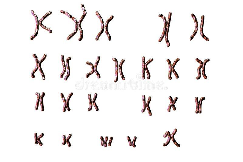 Karyotype Синдрома Дауна иллюстрация штока