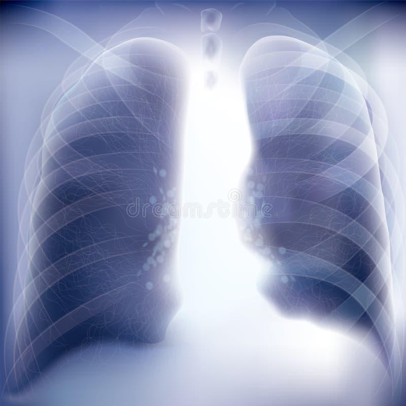 Kastenbild, realistische Röntgenstrahlschüsse lizenzfreie abbildung